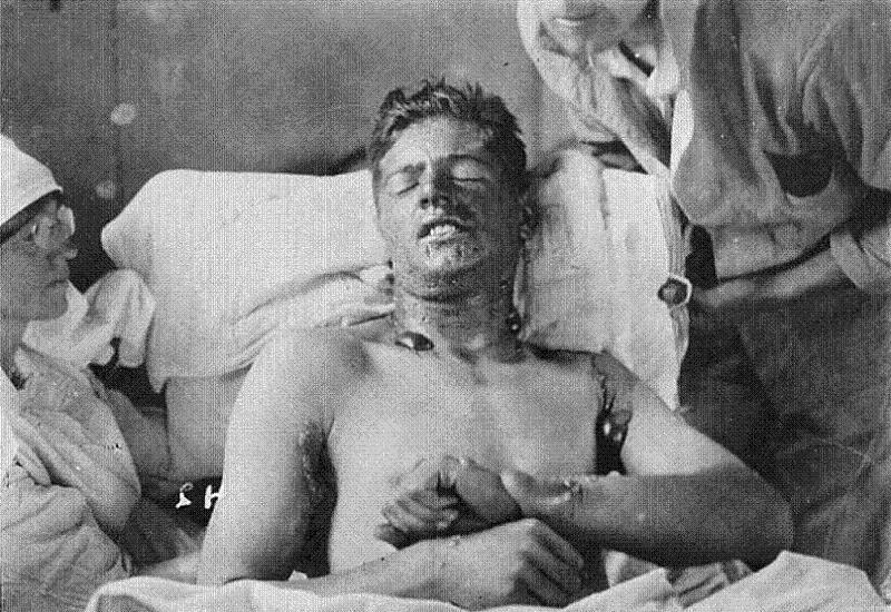 Inhumane Nazi Medical Experiments